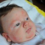 Как лечить аллергию у новорожденных на теле